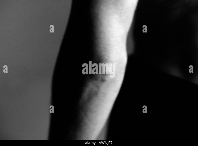 mans-elbow-close-up-black-and-white-awnj